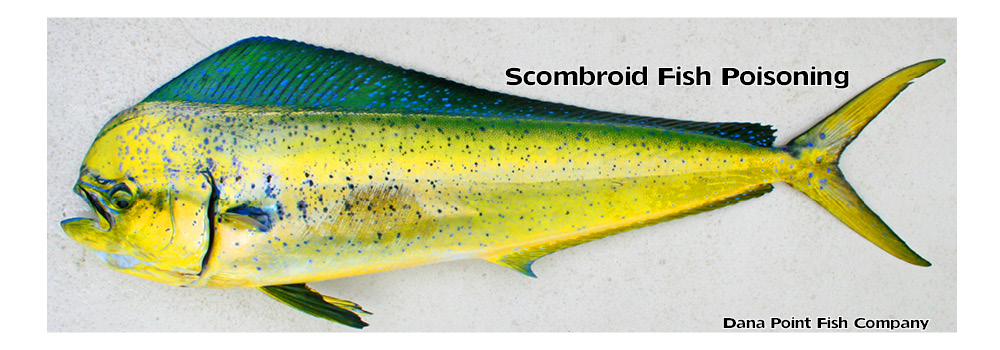Scombroid Fish Poisoning